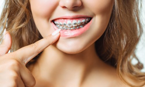 Orthodontic Treatment. Dental Care Concept. Beautiful Woman Healthy Smile close up. Closeup Ceramic and Metal Brackets on Teeth. Beautiful Female Smile with Braces